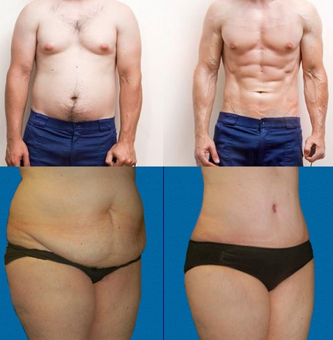 ¿Cómo perder grasa de forma efectiva en este 2019?